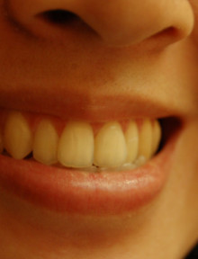 4 hammaste tundlikkuse põhjustajat